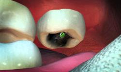 Видео: Осмотрев зубы пациента, стоматолог испытал шок!