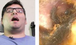 Видео: Можно ли оглохнуть от собственной серы в ушах?